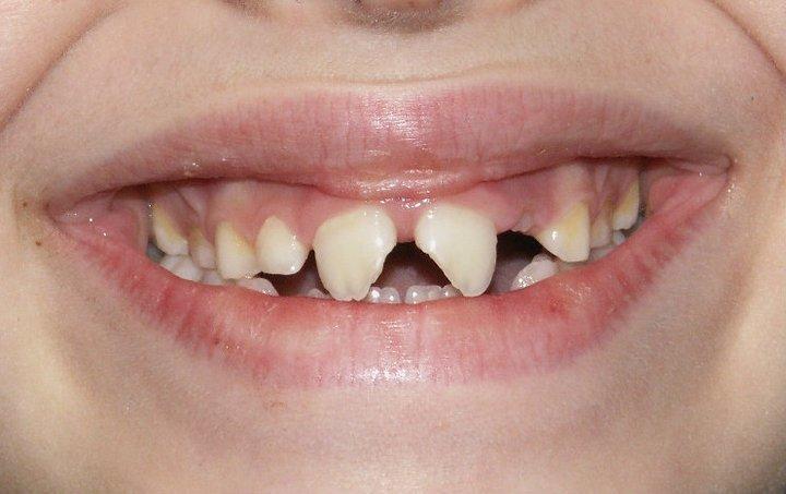 traumi dei denti
